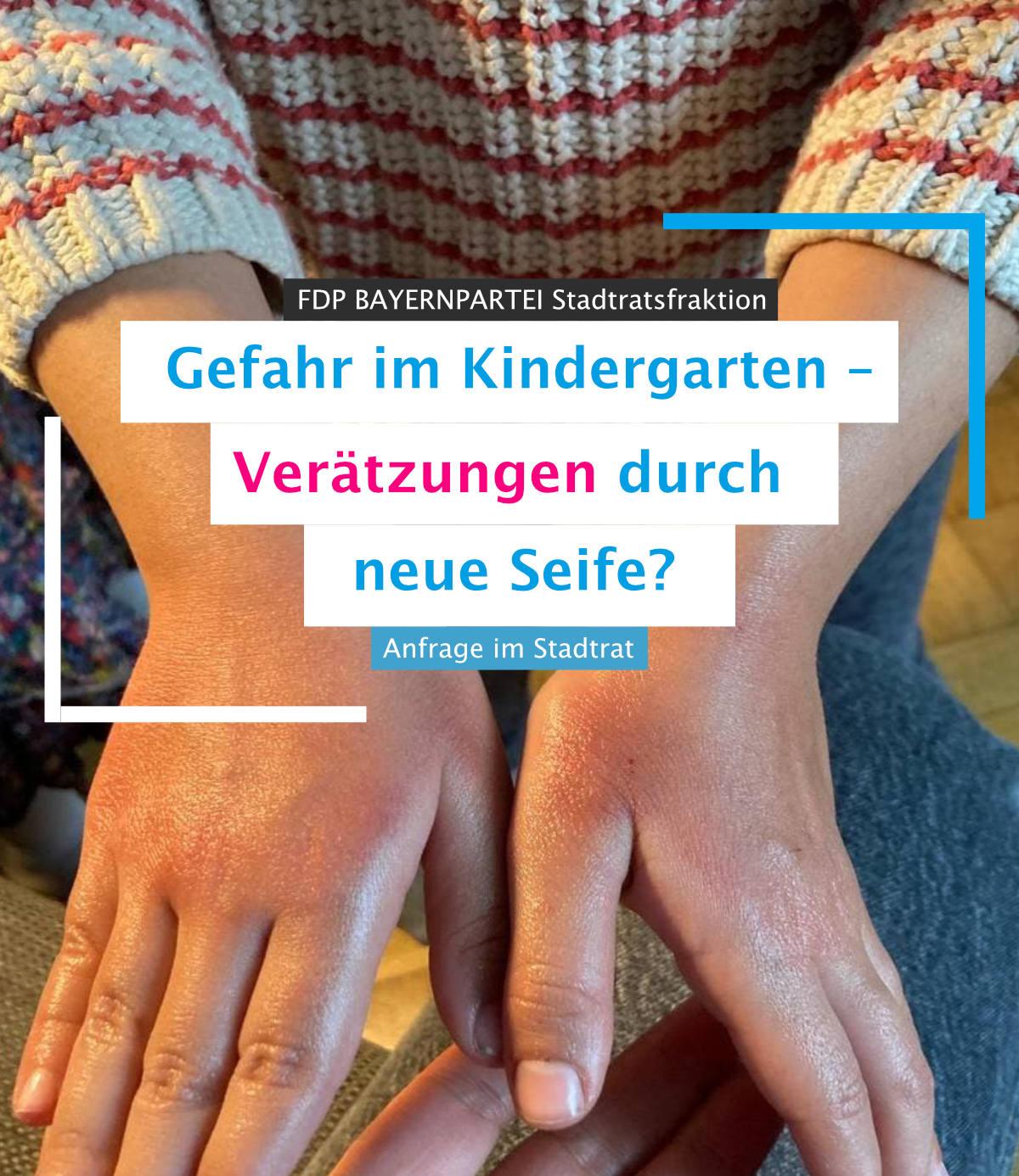 Anfrage_Verätzungen_Seife_Kindergarten
